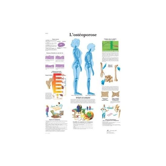 Planche anatomique ostéoporose