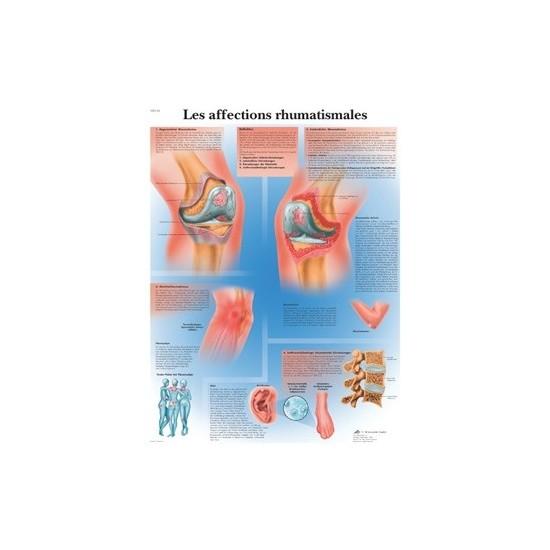 Planche anatomique...